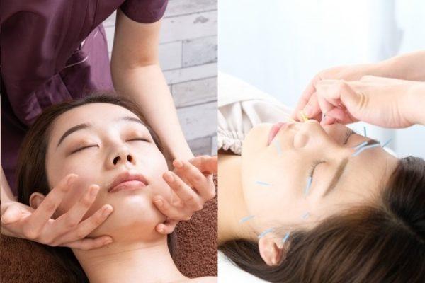 美容鍼の施術内容・料金・時間