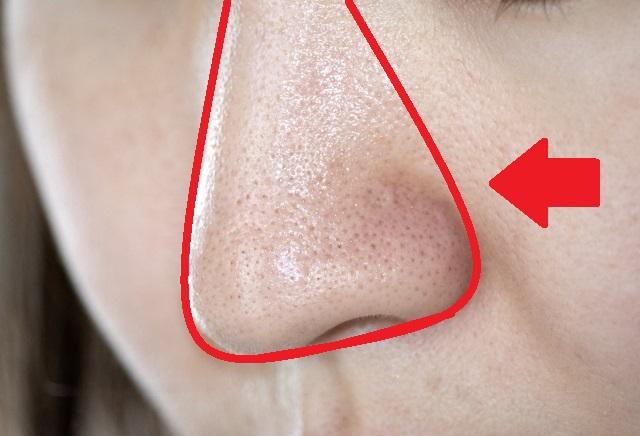 いちご鼻を無料で簡単に改善・予防していける方法
